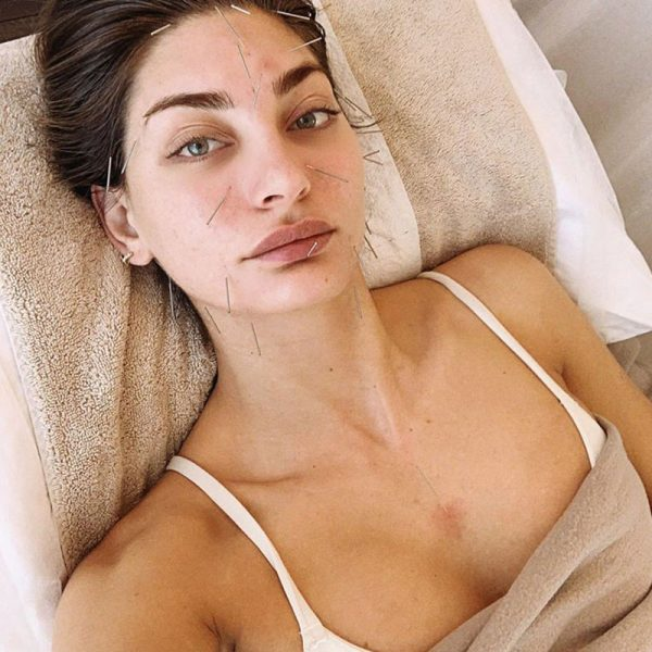 model getting cosmetic acupuncture - natural botox melbourne - better than botox melbourne