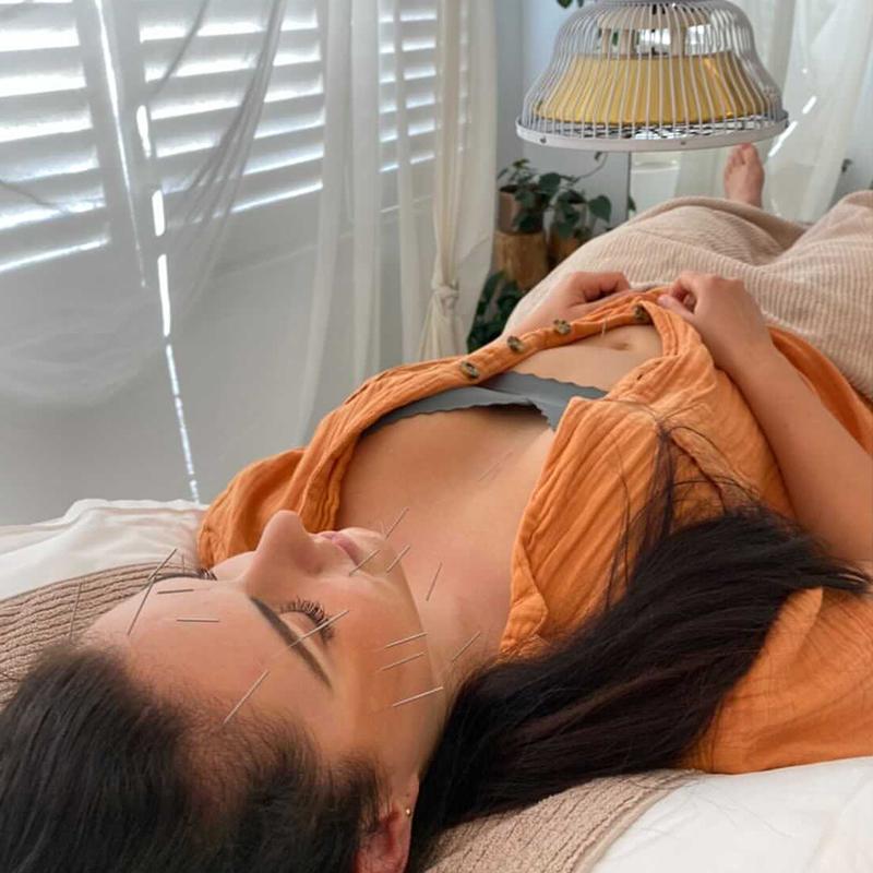 zhong centre facial acupuncture melbourne